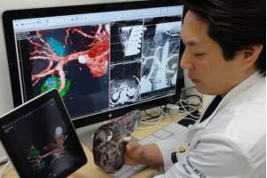 3D utilizado em cirurgia vascular